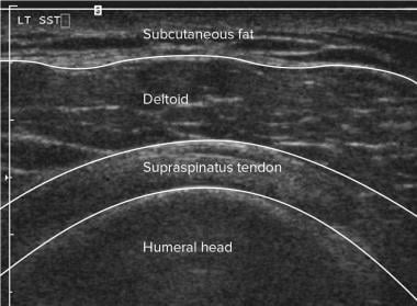 Shoulder, rotator cuff injury (ultrasonography). D