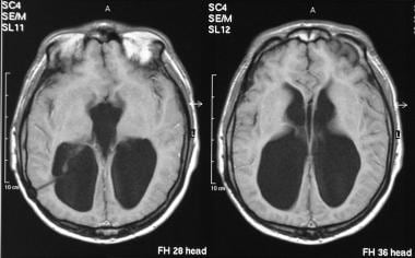 Axial T1-weighted MRIs of the brain show gross ven