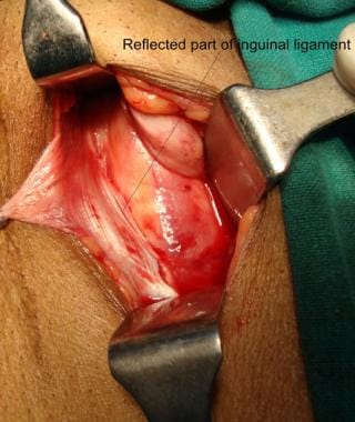 Open inguinal hernia repair. Inferior flap of exte