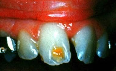 Severe enamel hypoplasia (ie, Turner tooth) on a s