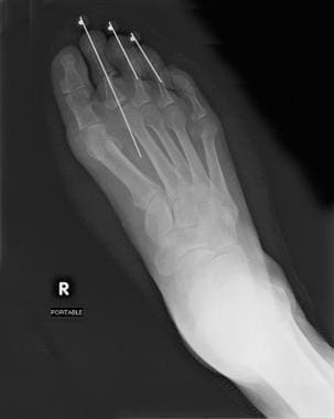 Postoperative radiograph shows Keller, or resectio