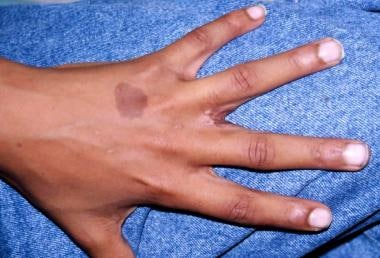 Simple incomplete syndactyly between long finger a