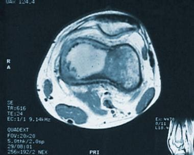 Magnetic resonance image (MRI) of low-grade centra
