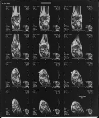 T2-weighted sagittal MRI of the left foot demonstr