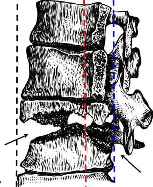 Drawing of Chance fracture of thoracolumbar juncti