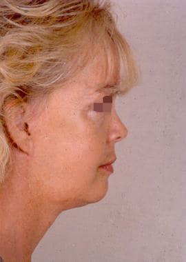 Side profile 9 months after a subcutaneous skin-on