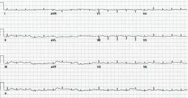 Typical alternate-beat QRS electrical alternans. N
