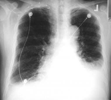 Radiograph shows interstitial pulmonary edema, car