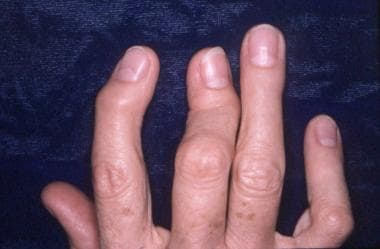 Severe fixed flexion deformity of the interphalang