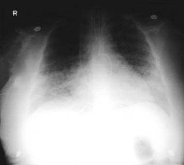 Viral Pneumonia Workup: Approach Considerations, Cytologic