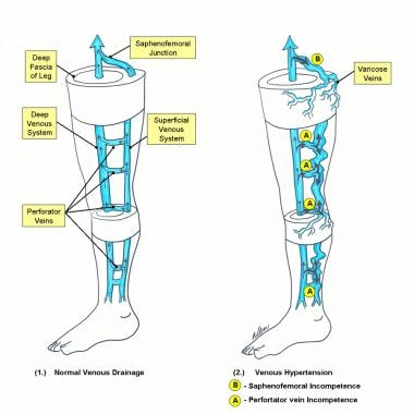 Schematic diagram of deep and superficial venous s