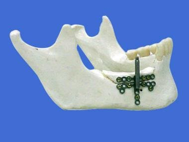 Distraction osteogenesis of the mandible. Alveolar