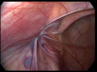 Laparoscopic view of the repaired left indirect in