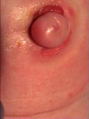 Stoma brought directly through the umbilicus.