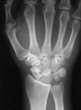 Lunate dislocation. Posteroanterior projection of