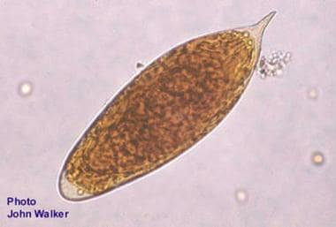 Egg of Schistosoma haematobium from a fecal smear.