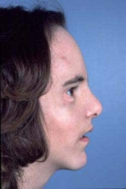 Same patient. Postoperative result treated by the