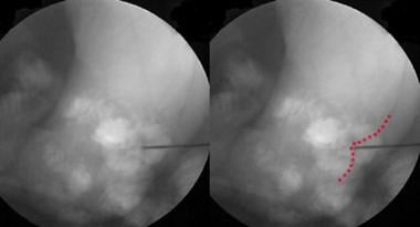 With anterior fluoroscopy alone, depth of needle c