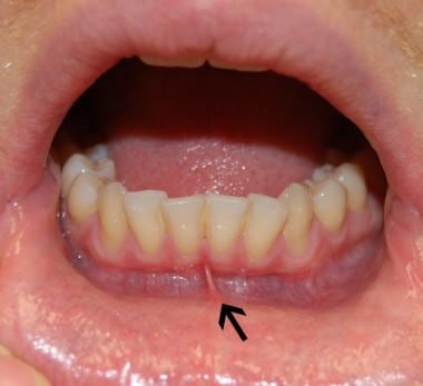 Lower vestibule (lower lip everted). Arrow indicat