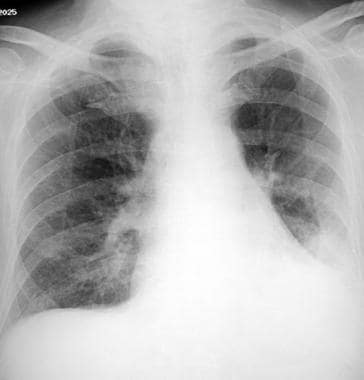 Aspiration pneumonia. An 84-year-old man in genera