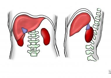 Pneumoperitoneum. Diagram of the right upper quadr