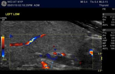 Ultrasound imaging with color Doppler interrogatio