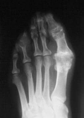 Radiograph of the foot in a patient with chronic g