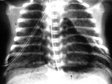 Meconium aspiration. Follow-up radiograph of the p