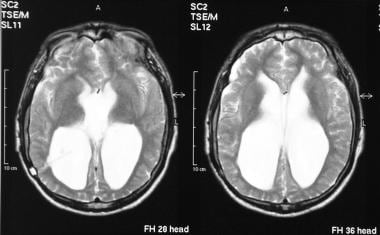 Axial T2-weighted MRIs of the brain (same patient