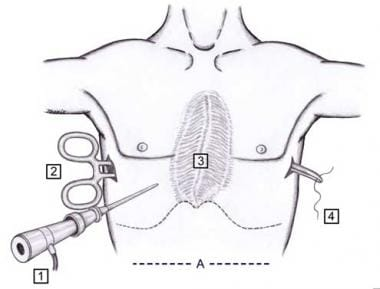 Nuss procedure. Minimally invasive technique for c