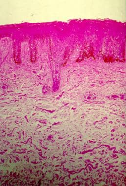 Deposition of mucin in the reticular dermis (hemat