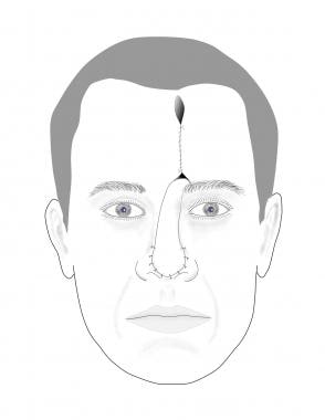 The forehead flap is incised, elevated, and suture
