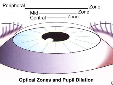 Optical zones and pupil dilation discussed by radi