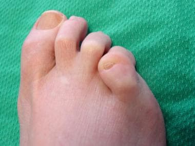 Fifth-toe deformities. Overlapping fifth toe is do