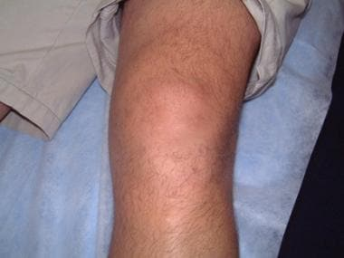 Hemarthrosis of the knee occurs early following in