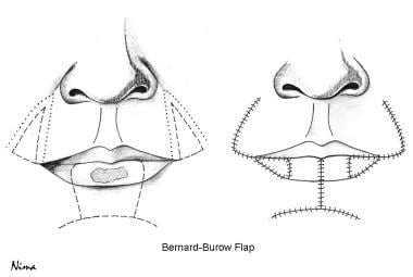 Bernard-Burow flap technique.