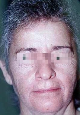 Before carbon dioxide laser resurfacing. Female pa