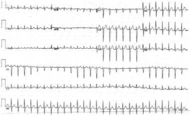 Supraventricular tachycardia with alternans. Note
