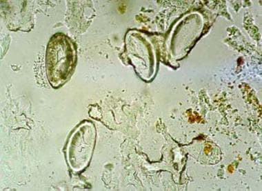 Microscopic view of Enterobius vermiculariseggs at