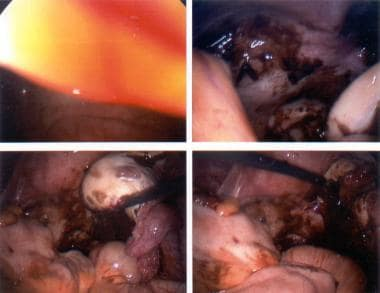 Endometriosis. Chocolate cyst of the ovary.