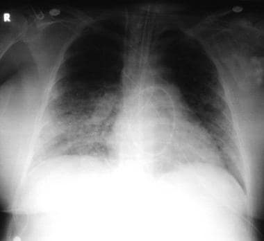 Pneumonia, viral: A 52-year-old woman developed fe