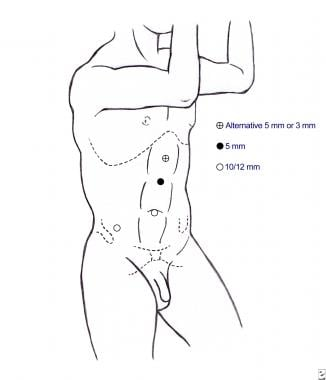 Trocar placement for a right laparoscopic radical