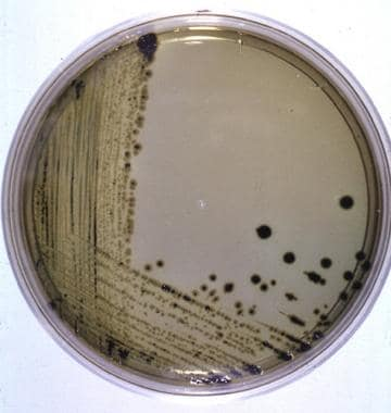Example of Salmonella on Hektoen enteric agar. The