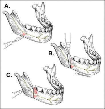 Distraction osteogenesis of the mandible. A recipr