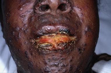 Dermatologic Manifestations of Stevens-Johnson Syndrome and Toxic Epidermal Necrolysis: Overview ...