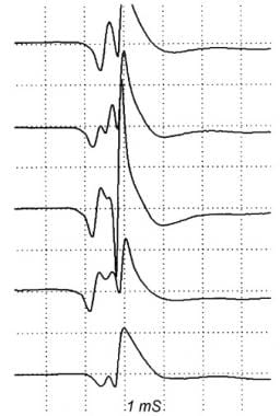Action potentials from a single motor unit in a pa
