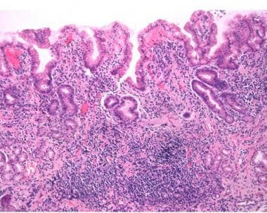Biopsy of gastric antral mucosa of patient with He