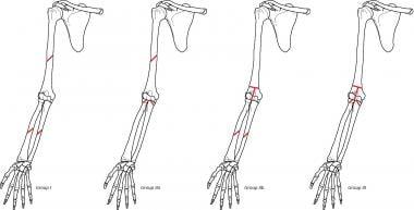 Ditsios floating elbow prognostic classification.