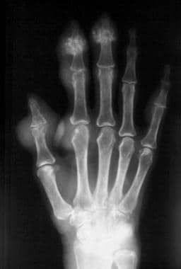 Radiograph of the hand. On this image of chronic t