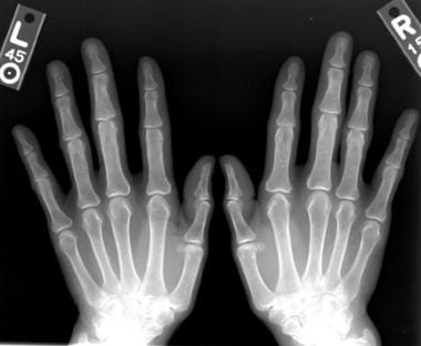 Bilateral anteroposterior (AP) radiographic views